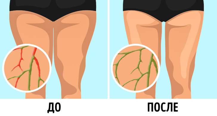 6 простых лимфодренажных упражнений, с которыми вес уходит без диет